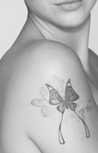 Tattoo Removal Gallery